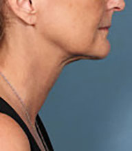 After kybella treatment